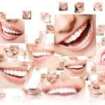 Appareil dentaire traditionnel : comment choisir ?